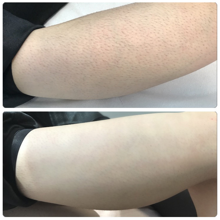 Black and coarse hair: laser hair removal results