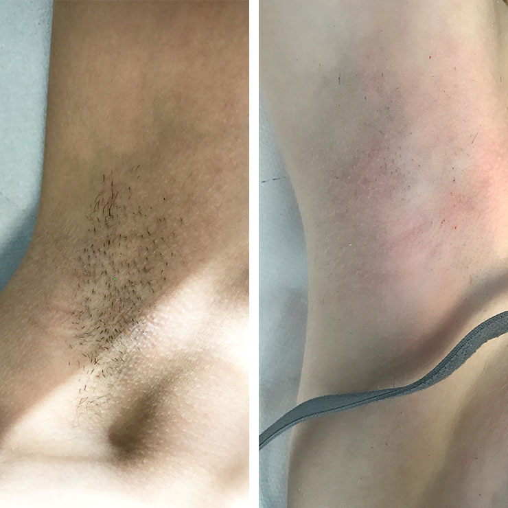Thick, dark underarm hair
